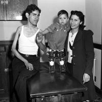 three people show the effects of infantile paralysis